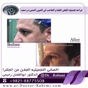 جراحه الجفن الشرقی