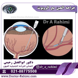 جراحة متطورة وحساسة للعيون باستخدام روبوت